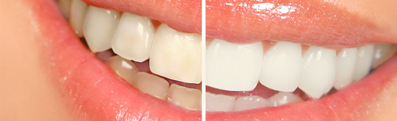 Before and after teeth whitening at Budi Dental Buderim